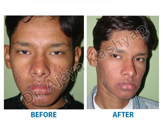 non surgical neck lift surgery Delhi