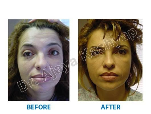 double chin surgery Delhi