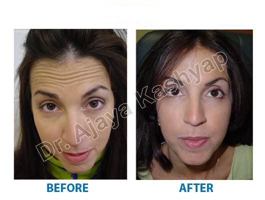 Best Filler Skin Treatment Delhi, Filler Clinic Cost in India