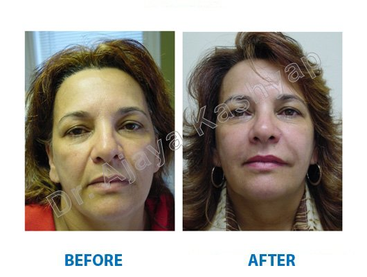 Best Chemical Peels Treatment In Delhi Cost For Skin Face